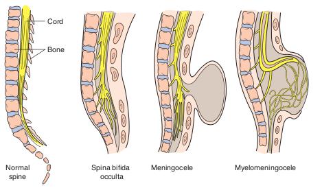 Neural-tube-defects