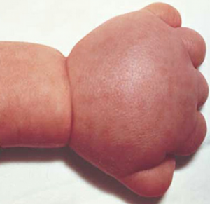 Turners-Syndrome-photos-300x291