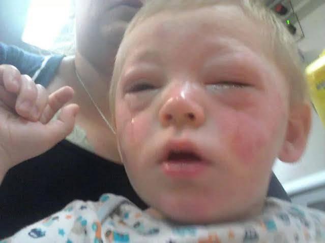 Аллергия на рассаду помидоров сыпь на руках 91